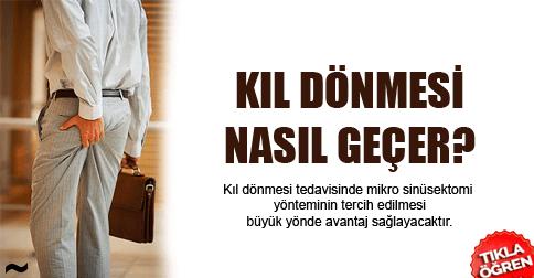 kil-donmesi-nasil-gecer