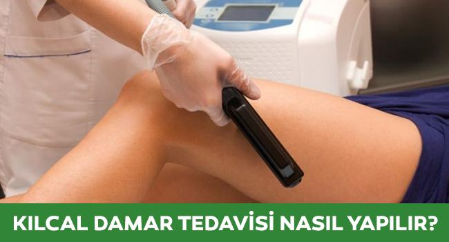 kılcal damar tedavisi